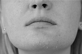 賀多利多乘激活保濕噴霧 玻尿酸保溼精華 乾燥脫皮