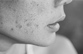 賀多利多乘激活保濕噴霧 玻尿酸保溼精華 痘痘